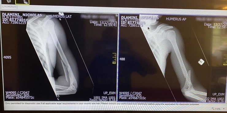 An x-ray of Nicholas Dlamini's broken arm